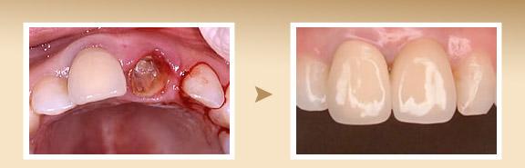 【症例】左前歯