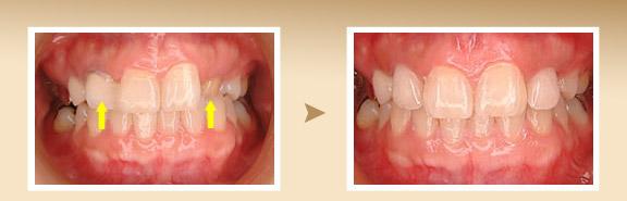 【症例】左右犬歯